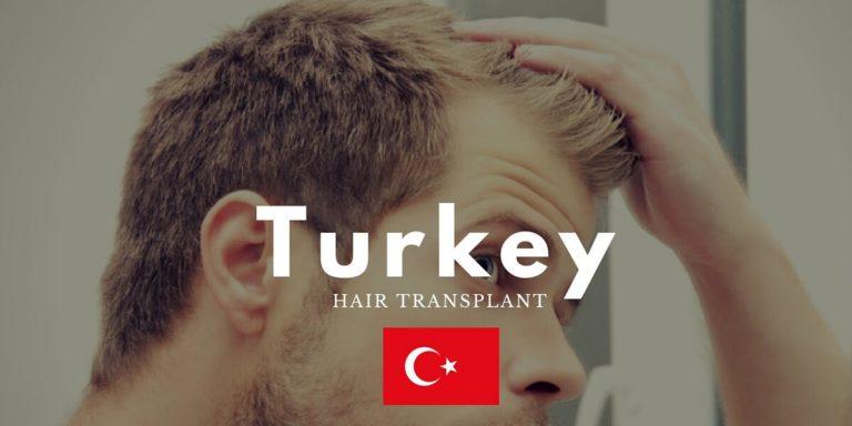 الأسباب التي جعلت تركيا الوجهة الأولى لإجراء زراعة الشعر